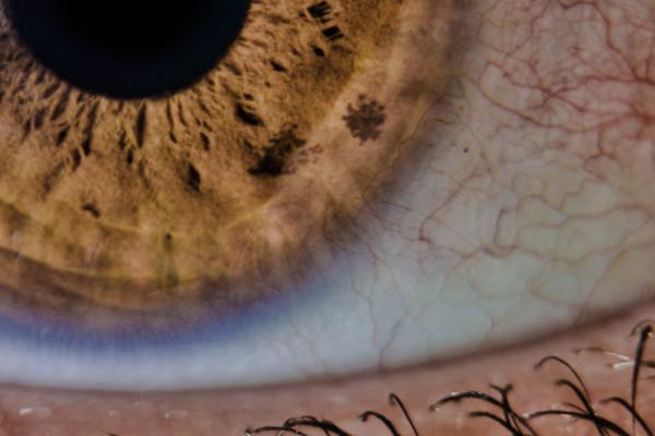 ögon-120506_02-4